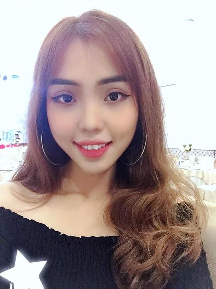 Sự thật sau chuyện cô gái ở Đà Nẵng bị chồng sắp cưới tạt axit hủy hoại là gì?