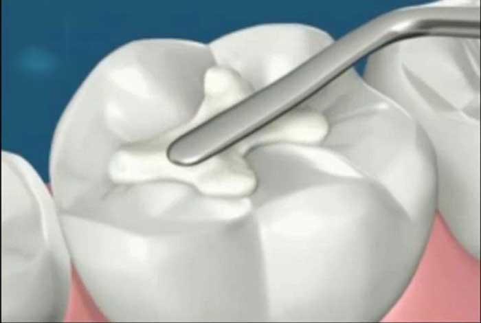 Những lợi ích của việc bảo vệ sức khỏe răng miệng