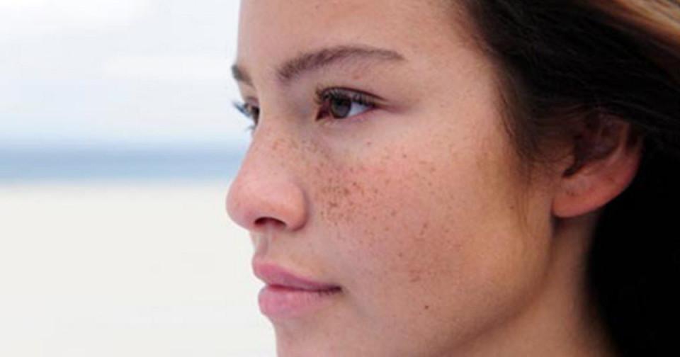 Nám da là gì? Cách trị nám da như thế nào?   Đẹp365