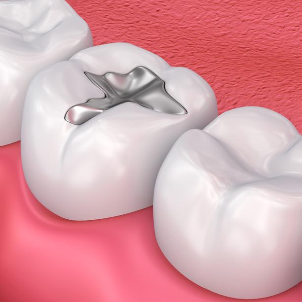 Tại sao nên lựa chọn trám răng: