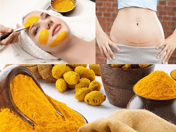 Tinh bột nghệ và mật ong trị rạn da cho phụ nữ sau sinh