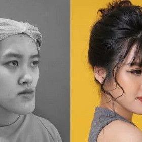 Mai Anh trước và sau phẫu thuật thẩm mỹ